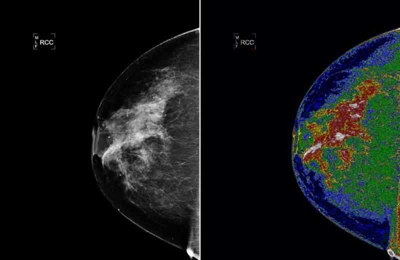 Cancro mama. - ph. NASA Goddard Space Flight Center